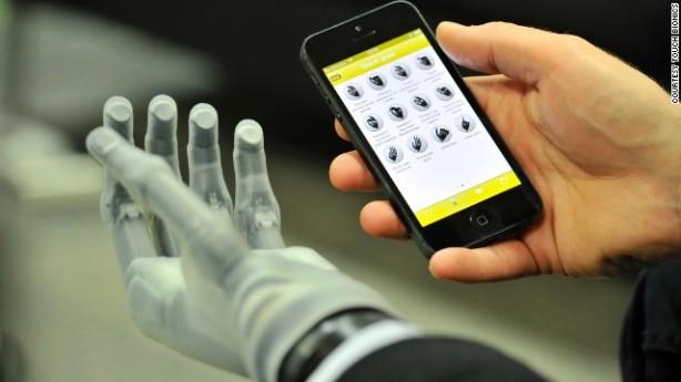 1-bionic-hand-story-top