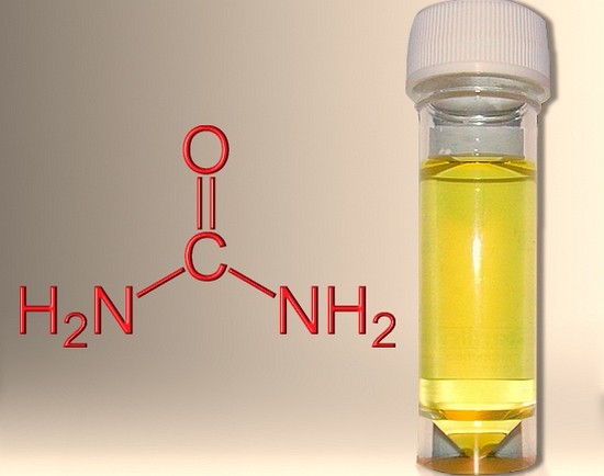 hydrogen-from-urine-for-cars