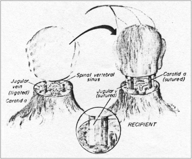 head-transplant-rhesus
