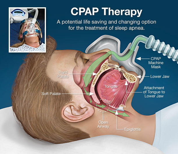 Cpap Therapy Demonstrated To Reduce Depression In Adults With