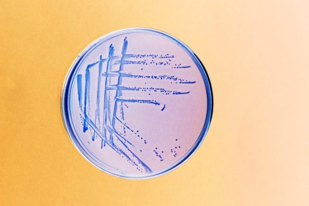 BR3GWM bacteria streaked and grows on an agar plate in the lab